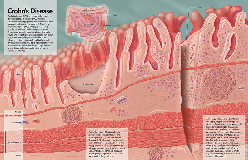 Pathology of Crohn's Disease